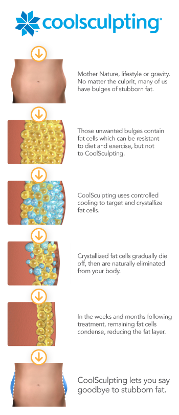 orange county coolsculpting process